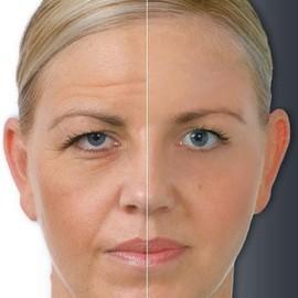 мезотерапия лица фото до и после