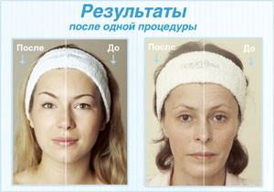Кислородное омоложение лица фото до и после