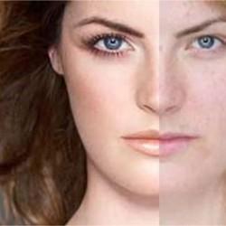 фотоомоложение лица фото до и после